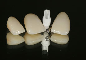 CROWNS FOR TWO NATURAL TEETH AND ONE IMPLANT ABUTMENT