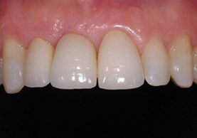 FINAL RESULT WITH NOBEL ACTIVE IMPLANT OF FUTURE
