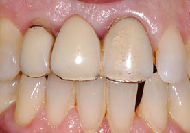 BEFORE IMPLANT 3 UNIT BRIDGE