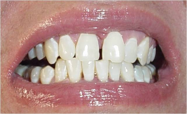 Dental Implants Punjab Zoom Laser Teeth Whitening