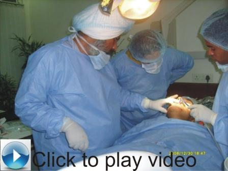 immediate extraction & immediat placement of dental implant and permanent teeth