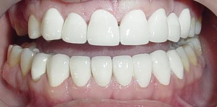 done hollywood smile designing & permanent teeth whitening