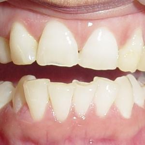 BOTH CANINE TEETH ARE DECEDIOUS (MILK TEETH)