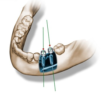 Using Computer-Guided Implant Surgery to Achieve Predictable Treatment Outcomes