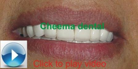 Done hollywood Smile designing click to watch video