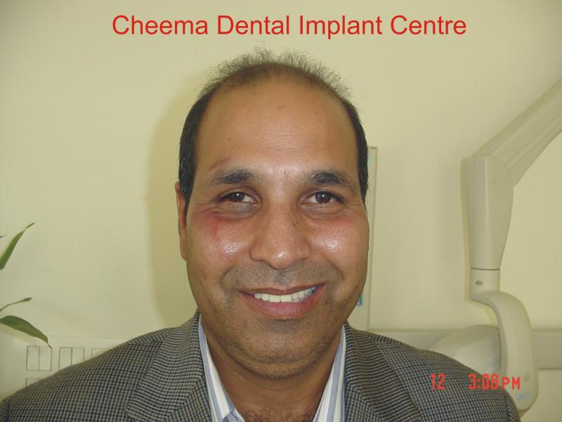 sukhdev thind front 2 immediate loading dental implants